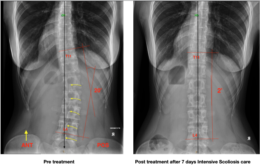 Scoliosis Treatment On Children - What You Should Know?